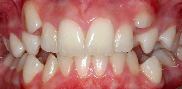 Có nên nhổ răng mọc thừa không?