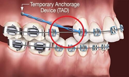Trong một số tường hợp, răng thừa được nhổ bỏ để tạo khoảng trống khi niềng răng