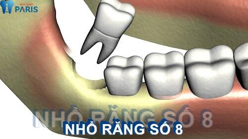 Nhổ răng số 8 có nguy hiểm hay biến chứng không?【BS tư vấn 1