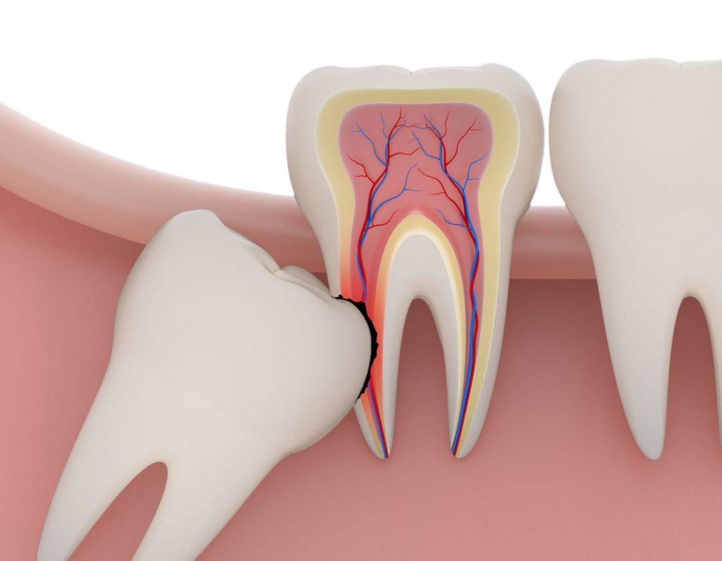 Chi phí nhổ răng khôn thường cao hơn các vị trí khác