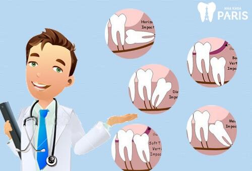 4 yếu tố xác định Bác sĩ nhổ răng khôn giỏi bạn nên biết 1