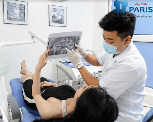 4 yếu tố xác định Bác sĩ nhổ răng khôn giỏi bạn nên biết 3