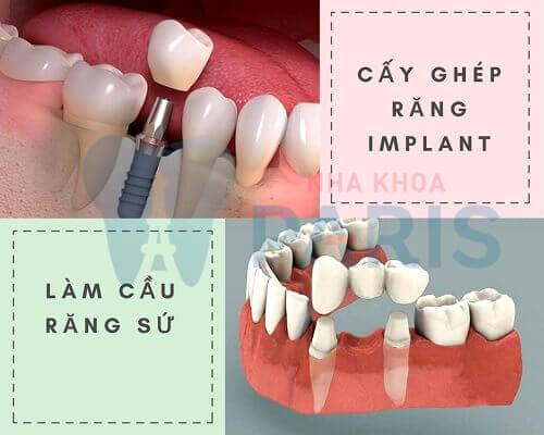 Mơ thấy rụng răng là điềm gì? Nên đánh con gì? Khắc phục ra sao? 4