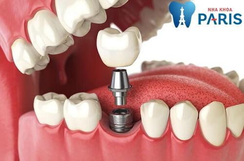 Có nên nhổ răng hàm số 6 không? Trường hợp nào cần nhổ bỏ? 3