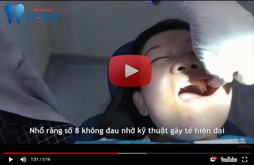 5 bước CHUẨN trong quy trình nhổ răng khôn với công nghệ hiện đại! 4