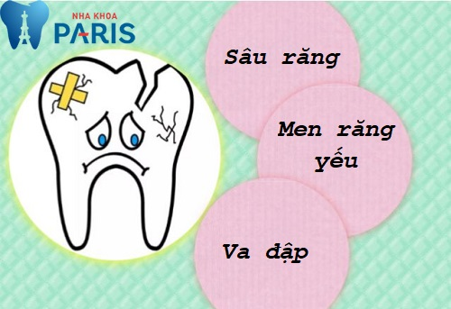 Răng khôn bị vỡ - Nguyên nhân và cách xử lý hiệu quả 1