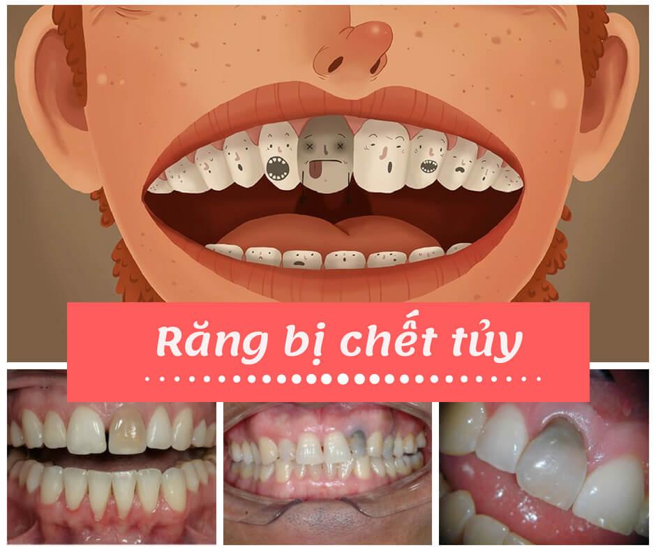 Răng sâu tới tủy - Dấu hiệu nhận biết, ảnh hưởng & cách xử lý 2