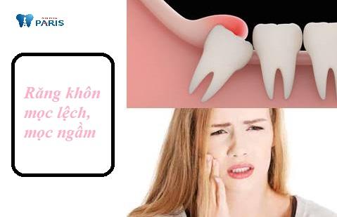 Mọc răng khôn hàm dưới có thể dẫn đến viêm lợi chùm, sưng má, mất răng vĩnh viễn.