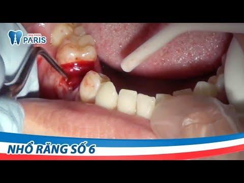 Video nhổ răng số 6 bằng công nghệ siêu âm Piezotome