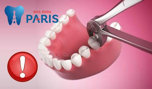 Nhổ răng hàm còn xót chân răng: Nguyên nhân - Dấu hiệu - Giải pháp 2