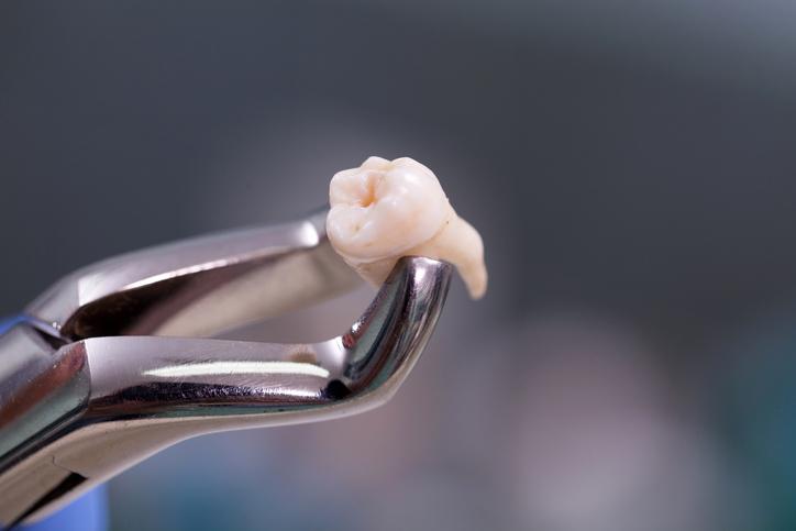 Nhổ răng được bác sĩ chỉ định khi răng khôn mọc lệch