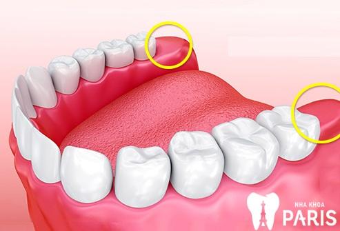 Răng khôn nhổ rồi có cần trồng lại răng khôn không?