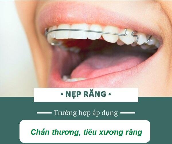 Nẹp răng áp dụng cho răng lung lay do chấn thương, tiêu xương răng