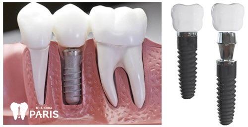 Sau khi nhổ răng hàm bị sâu thì nên trồng răng giả implant