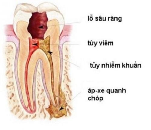 áp xe răng là gì