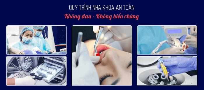 Quy trình nhổ răng khôn tại Hà Nội và TP.HCM an toàn, vô trùng tuyệt đối.