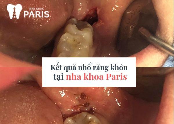 Nhổ răng khôn tại nha khoa Paris hoàn toàn không đau, không chảy máu.
