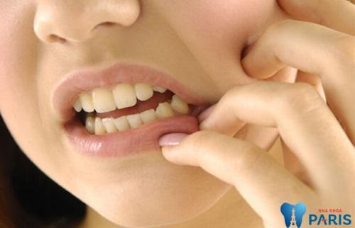 Cơn đau trước khi nhổ răng khôn luôn hành hạ bạn từng giờ, từng phút