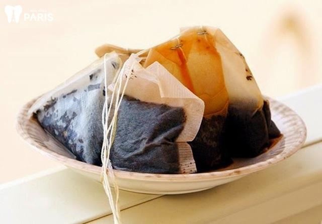 Giảm đau răng khôn khi mang thai bằng túi trà lọc