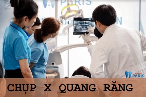 Chụp X quang răng giúp phát hiện và theo dõi răng và xương hàm