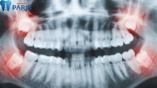 Bản chụp X quang xác định vị trí và thế mọc của răng khôn