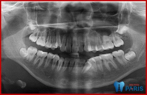 Chụp X quang răng có gây hại gì không?