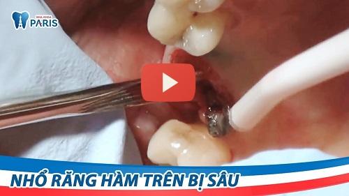 Video nhổ răng hàm bị sâu bằng máy siêu âm Piezotome
