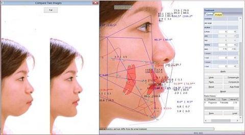 Phần mềm chỉnh nha giúp bác sĩ lên phác đồ chính xác nhất.
