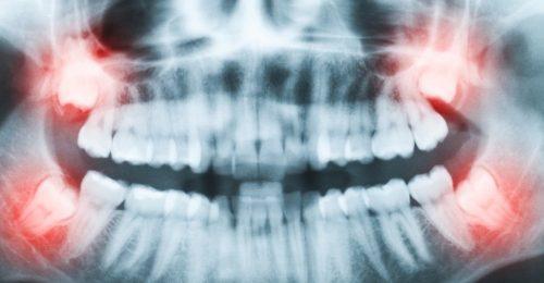 Nhổ răng số 8 để niềng răng.