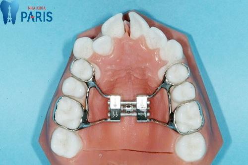 Nong hàm thay thế nhổ răng khi niềng.
