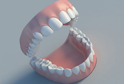 tại sao răng khôn mọc lệch