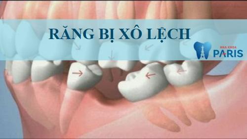 Cả hàm răng bị xô lệch hẳn về phần xương răng bị tiêu