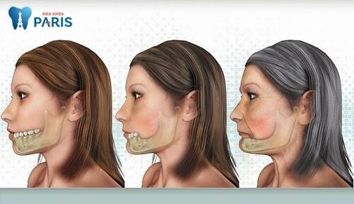 Khuôn mặt bạn sẽ già nhanh như thế này....