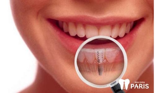 Thực hiện trồng lại răng sau khi đã ghép xương hàm