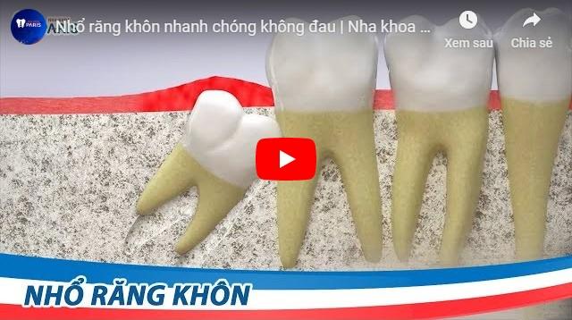 Video sau khi nhổ răng khôn có đau không