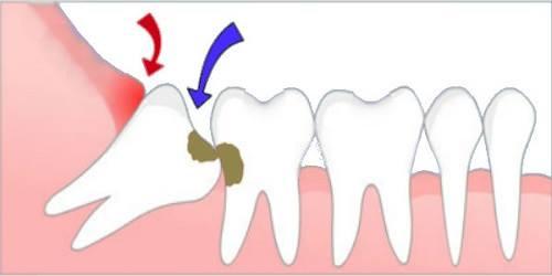 Nhổ răng hàm bao nhiêu tiền phụ thuộc vào đặc thù của răng.