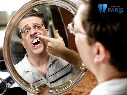 bài thuốc dân gian chữa răng lung lay