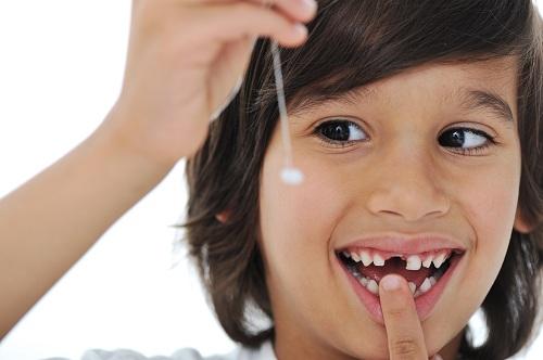 Cách nhổ răng cho bé