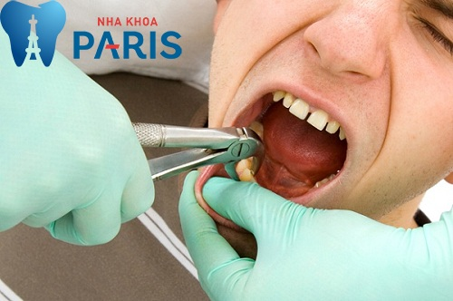 cách nhổ răng