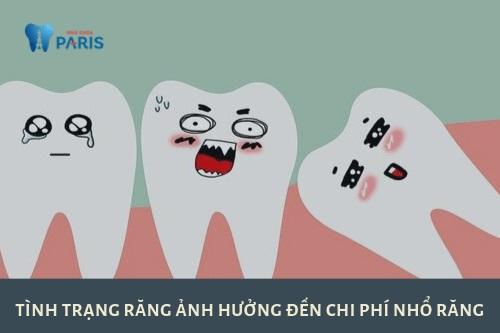 Chi phí nhổ răng giá bao nhiêu
