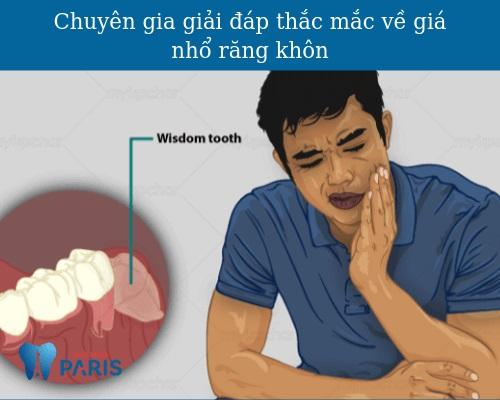 nhổ răng khôn mọc lệch bao nhiêu tiền