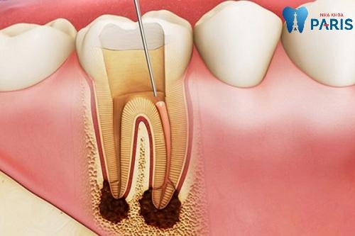 chữa tủy răng số 7