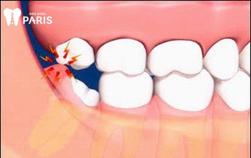 có nên nhổ 2 răng khôn cùng lúc