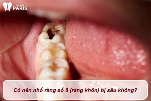 có nên nhổ răng số 8 bị sâu không