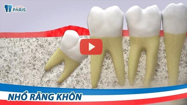 Có nên nhổ răng số 8