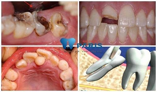 công nghệ nhổ răng không đau