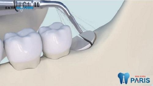 nhổ răng cấm hàm dưới có nguy hiểm không