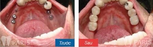 nhổ răng cấm số 6 có nguy hiểm không