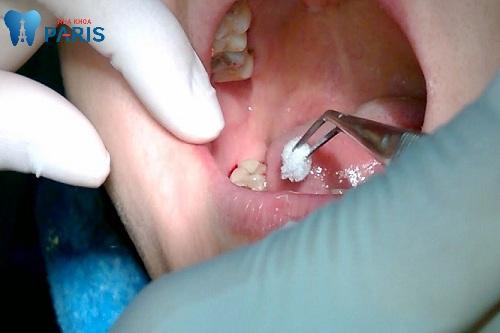 nhổ răng hàm dưới có đau không