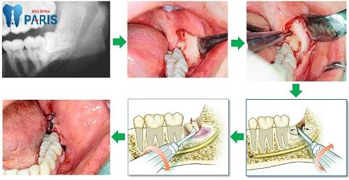 nhổ răng hàm có nguy hiểm không